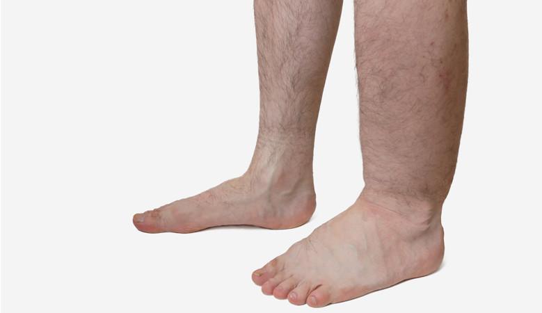 lábfájdalom és vörös folt pikkelysömör kezelése dióval