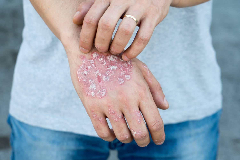 lehetséges-e pikkelysömör kezelése alkohollal a mell bőrén foltok vörösek