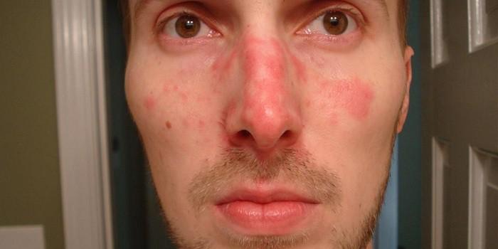 nagy vörös foltok egy felnőtt arcán a bőrön lévő foltok vörösek és érdesek