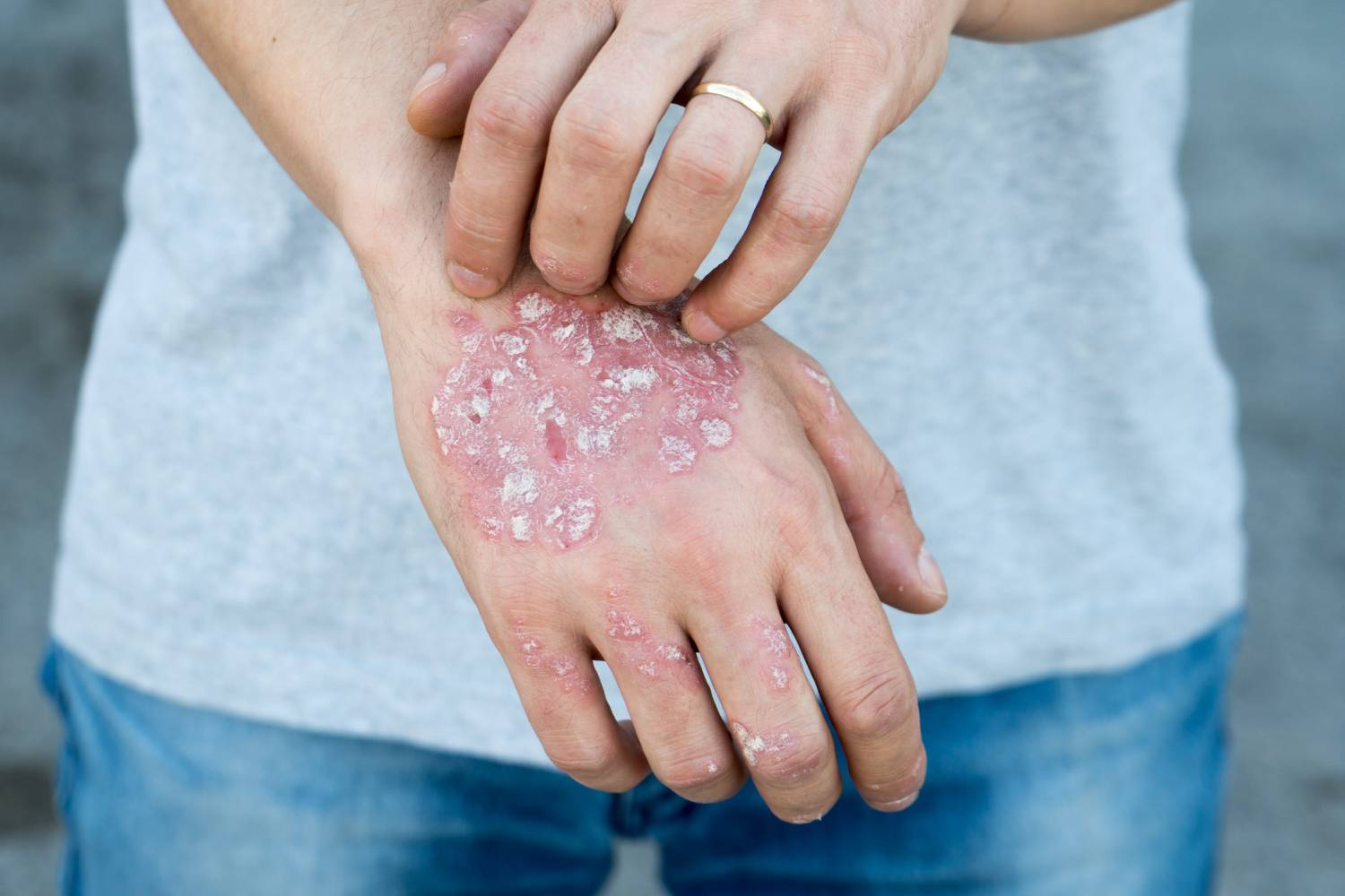 nagyon jó orvosság a pikkelysömör ellen vörös foltok hólyagokkal és viszketéssel jelentek meg a testen