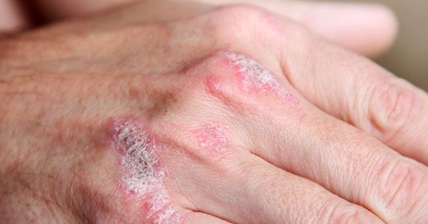 pikkelysömör kezelése klímaváltozás bőrkiütés vörös foltok formájában a kezeken