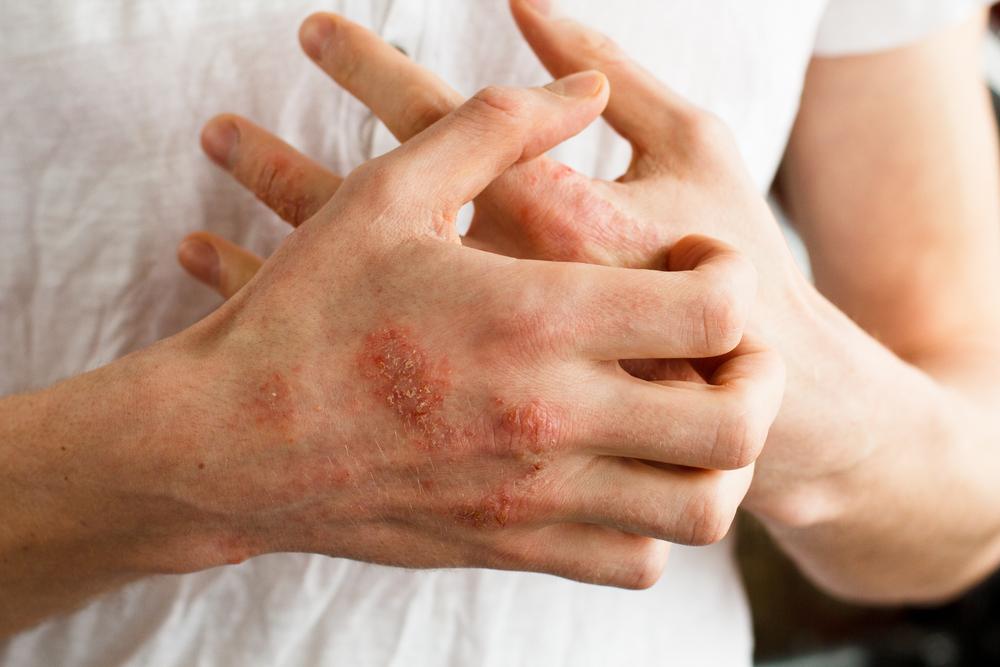 pikkelysömör az ujjon otthoni kezels krém pikkelysömörhöz vi-fruit-2