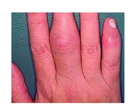 phosphogliv pikkelysömör kezelése gombaellenes szerek pikkelysömörhöz