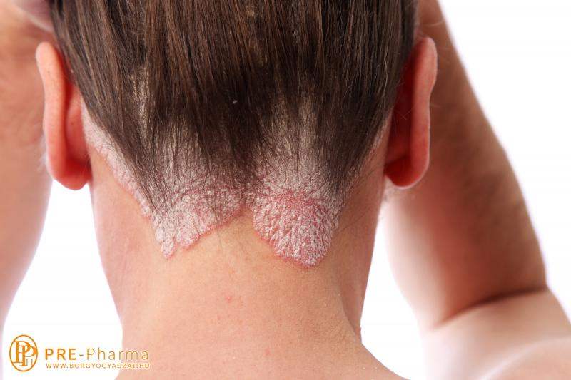 pikkelysömör kezelése készülékkel Hainan pikkelysömör kezelése