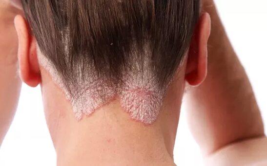 pikkelysömör kezelése ingyenes viszkető bőr a nyakon és vörös foltok