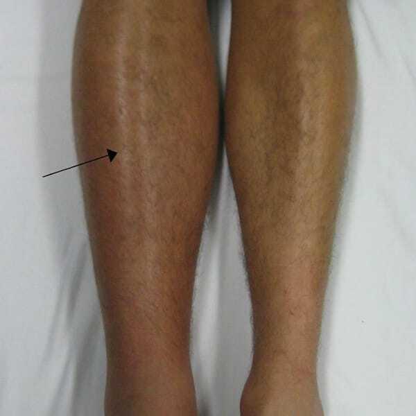 piros foltok az alsó lábszár fotóján vörös pattanások a bőrön, majd foltok keletkeznek