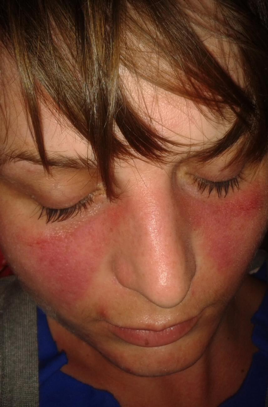 piros kék foltok az arcon mi ez