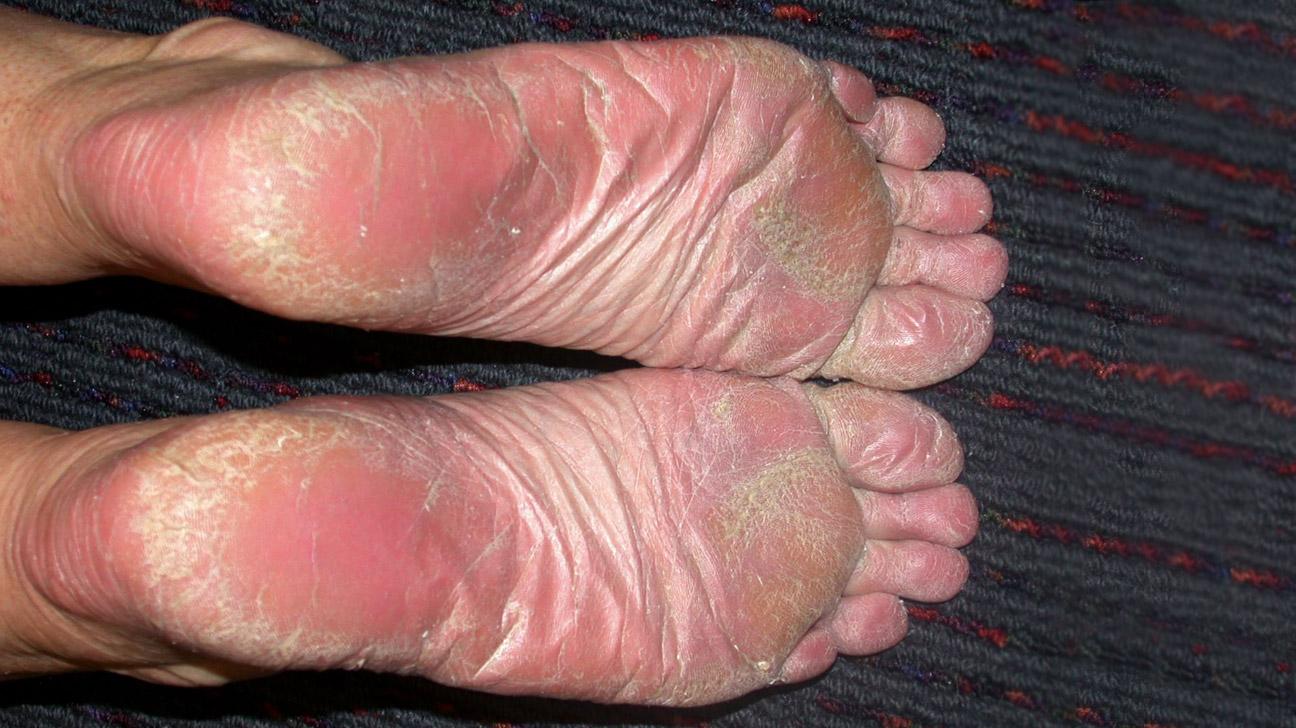 psoriasis on toes kezelés a lábakon piros foltok viszkető fotó