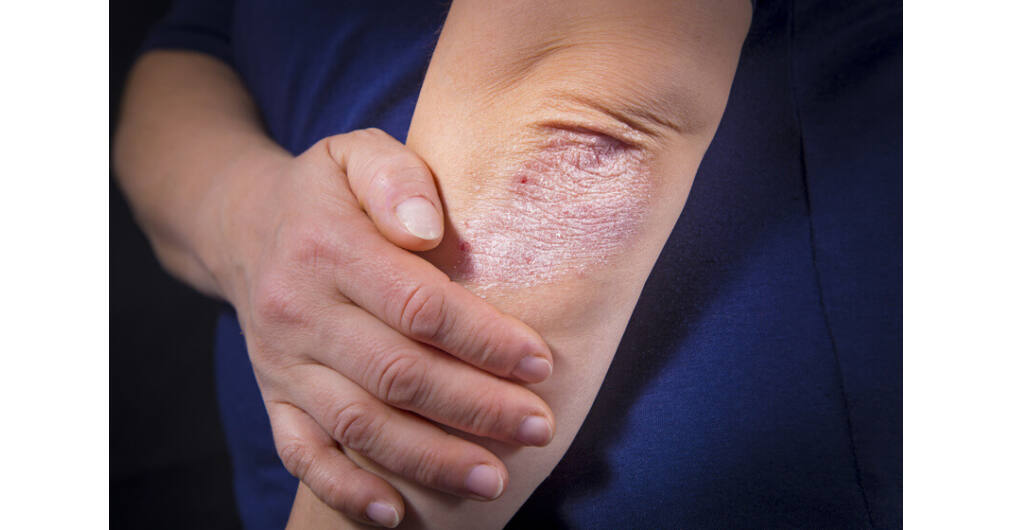 szerzett pikkelysömör annak kezelse gyógyszerek pikkelysömörre bőr sapka