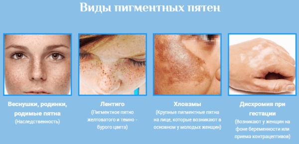 aloe pikkelysömör kezelésében vörös folt a hóna alatt hogyan kell kezelni