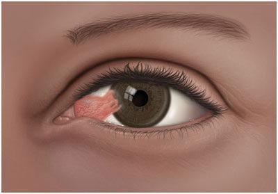 vörös folt a szemgolyón, hogyan kell kezelni olcsó pikkelysömör kenőcs