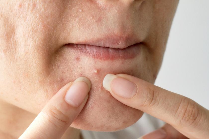 a testen vörös foltok viszketnek mi ez vörös foltok a szájpadon felnőttek kezelésében