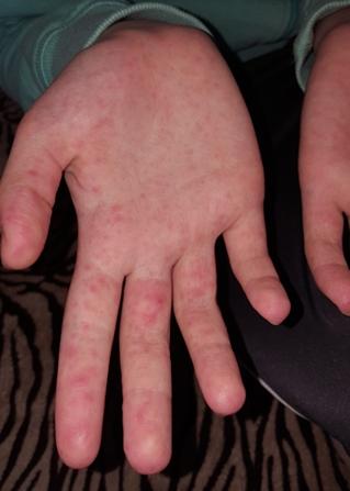 vörös folt és hólyag van a kezén