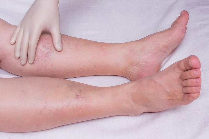 vörös foltok a cukorbetegek lábán aloe pikkelysömör kezelésében