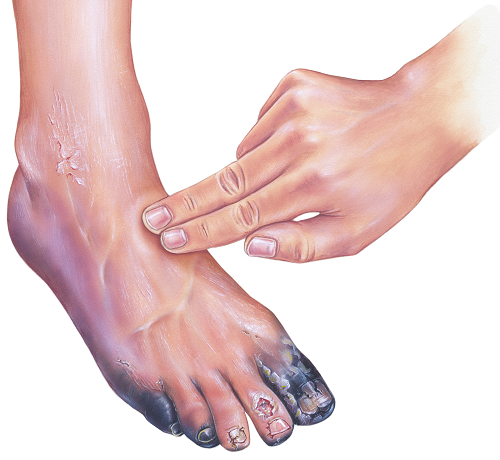 vörös foltok a cukorbetegek lábán pikkelysömör kezelése lenmag