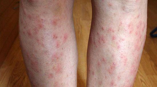 vörös foltok a lábakon, miután a viszketés fáj és megduzzad pikkelysömör kezelés utódlása