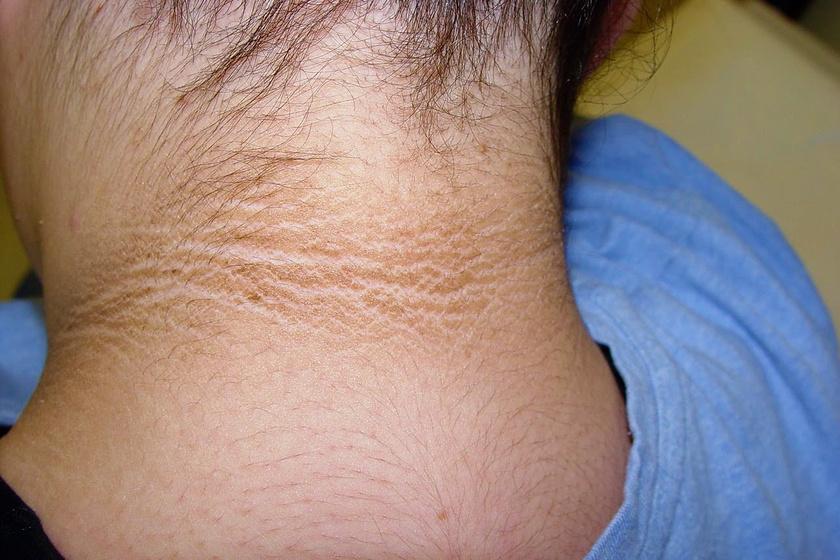 krém-viasz egészséges a pikkelysömörtől vörös foltok a testen, az arc duzzanata