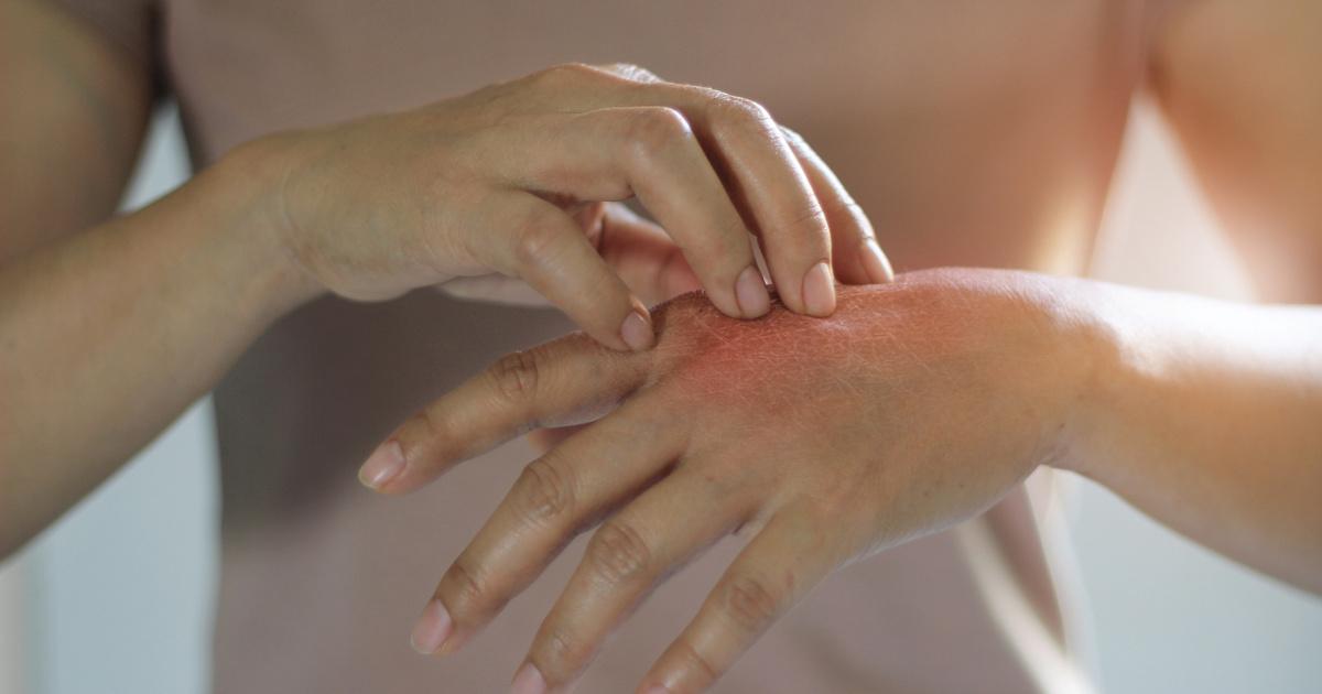 vörös foltok a tenyéren és a lábakon kezelés