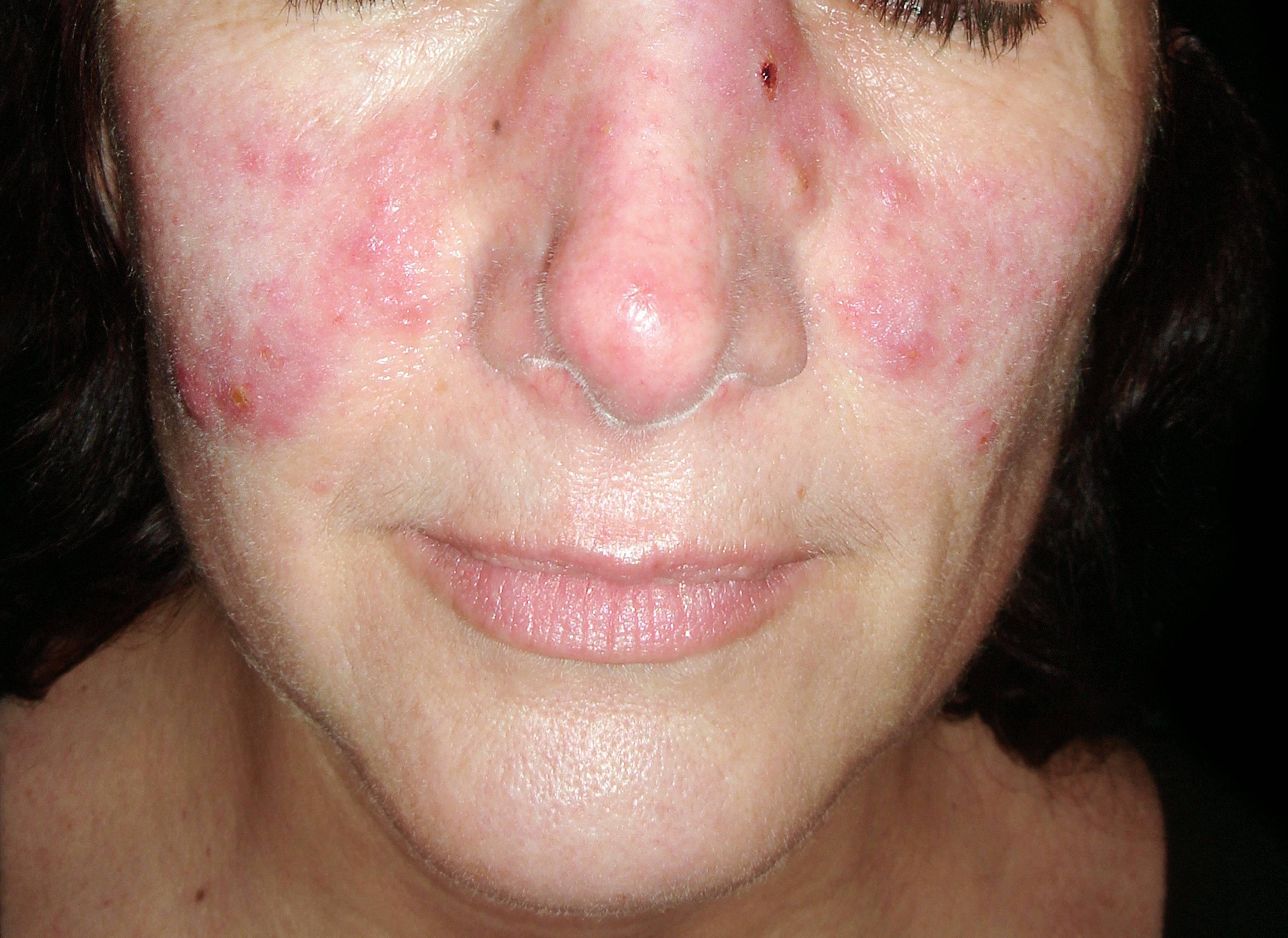 vörös foltok az arc bőrén fotó és a betegség neve rüh vörös foltok az arcon