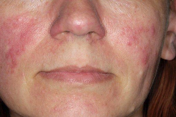 vörös foltok az arcon okoznak vörös foltok az arc kezelési módszerein