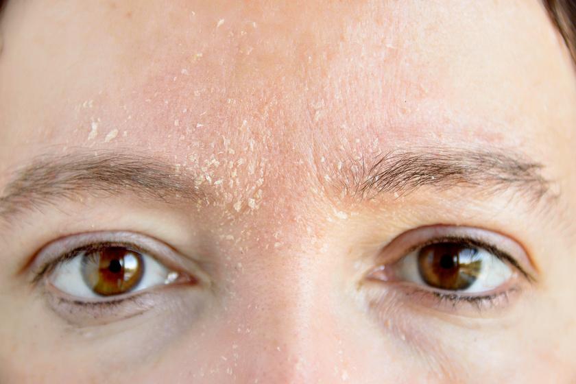 vörös foltok jelennek meg az arcon, a bőr hámlik