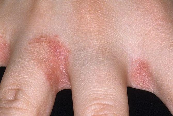 vörös foltok viszketnek az ujjakon
