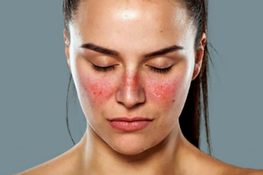 vörös foltokkal borított arc okoz