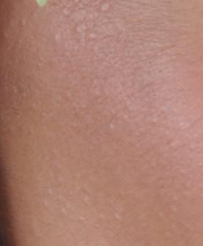 vzkezels pikkelysömör kezét vörös foltok borítják és kiszáradnak