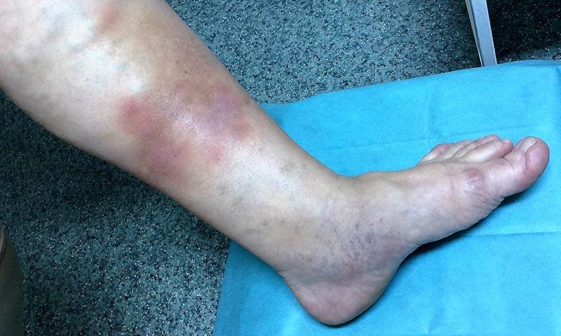 vörös foltok az arc bőrén fotó és a betegség neve pikkelysömör kezelése két hét alatt