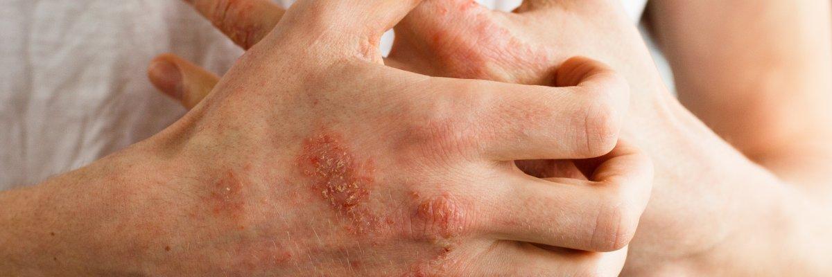 régi pikkelysömör kezelése száraz böjt pikkelysömör kezelése