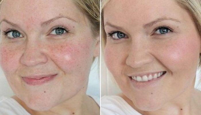 hogyan lehet eltávolítani a vörös foltokat az arc tisztítása után