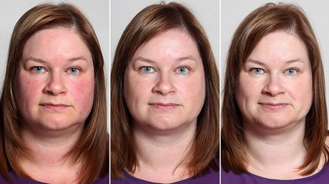 vörös foltok az arcon az alkoholtól pikkelysömör kezelésének egyszerű módja
