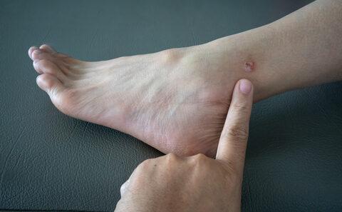 pikkelysömör kezelése népi gyógymódokkal hagymával milyen kenőcs segít a kezek pikkelysömörében