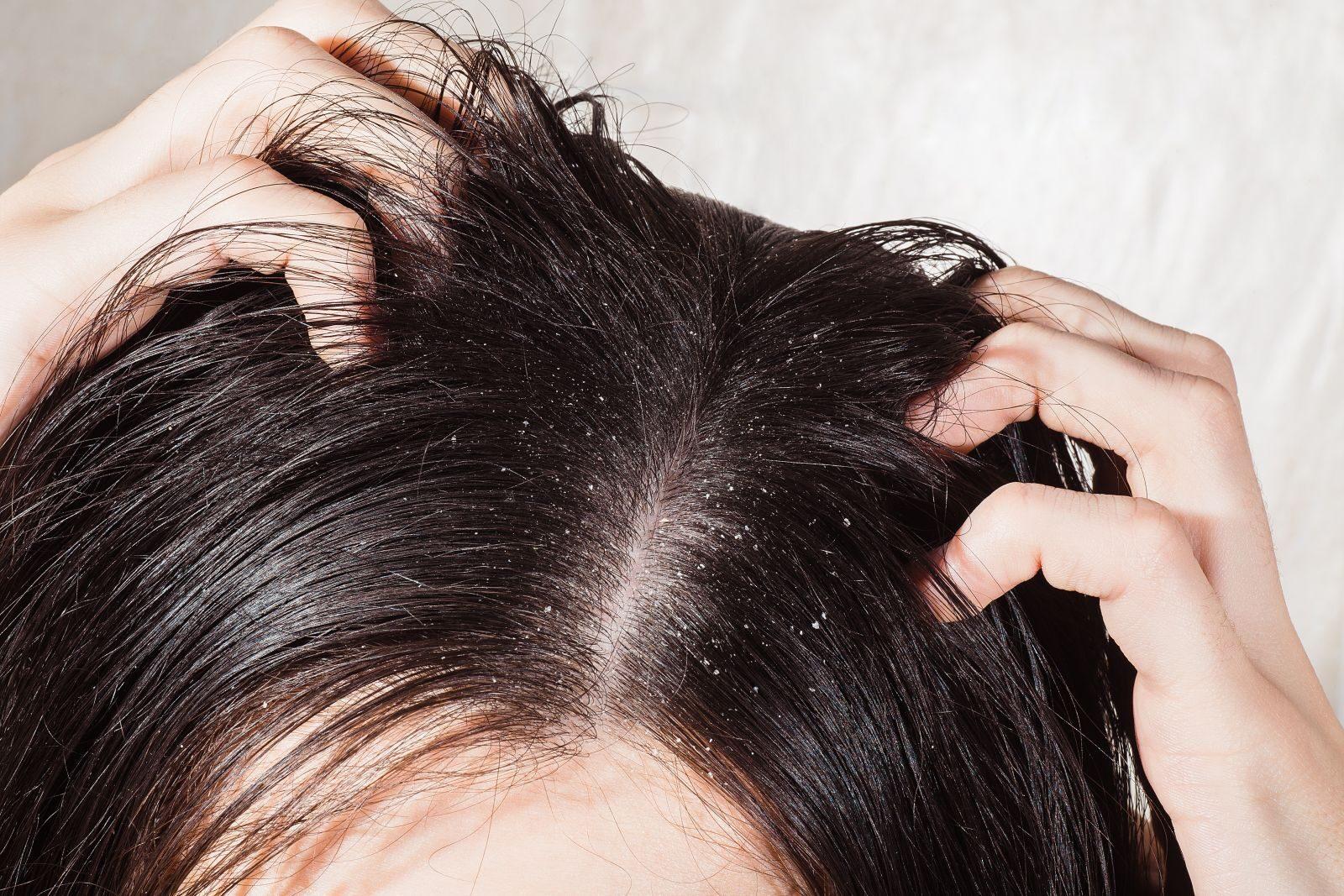 vörös folt a fejbőrön a haj alatt)