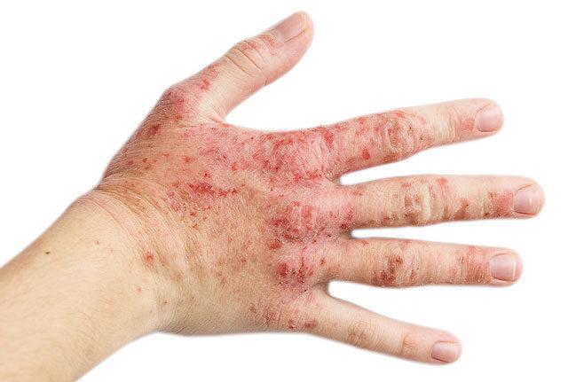 vörös foltok a kezeken és repedések