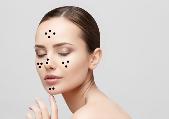 hogyan lehet eltávolítani az arcon lévő vörös foltokat a horzsolásoktól