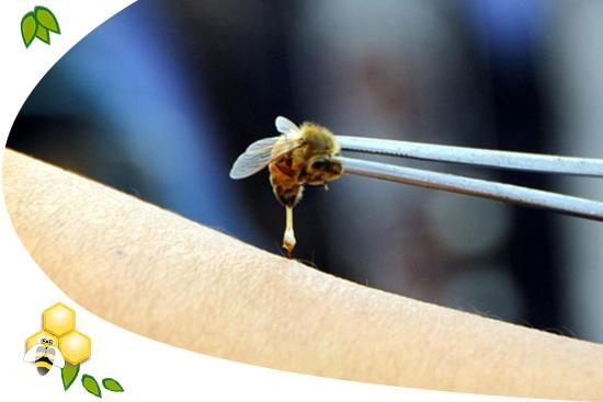 méhek krém viasz pikkelysömör pikkelysömör kezelése a psoriasis stacionárius szakaszában