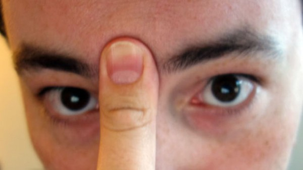 hogyan lehet krmviaszt egszsgesen megrendelni a pikkelysmr
