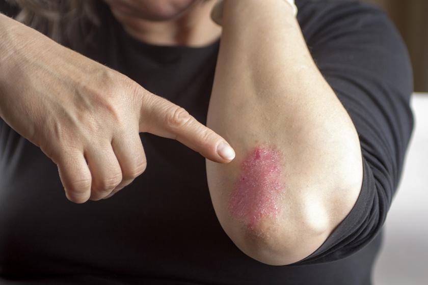 vörös foltok az ajkakon és a kezeken zsurló pikkelysömör kezelése