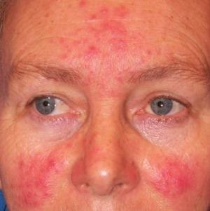 Vörös foltok az arcon viszkető duzzanat