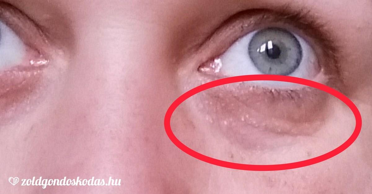 nagy vörös folt a borjún pikkelysömör kezelése mint kezelni