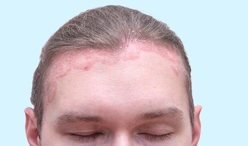 pikkelysömör fogászati kezeléssel vörös foltok az arcon menopauza alatt