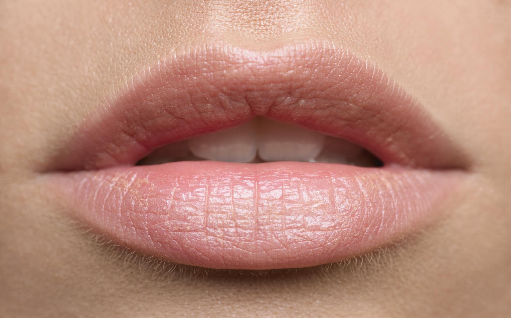 vörös foltok jelentek meg a száj körüli arcon vörösélű lábfolt