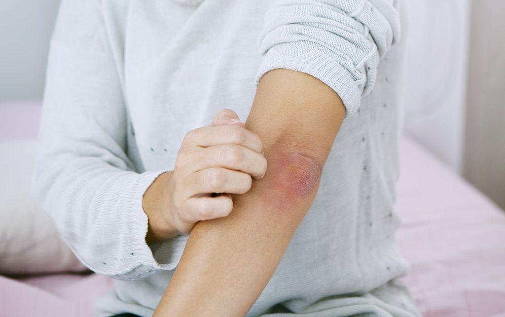 betegség pikkelysömör alternatív kezelsi mdszer hogyan kezeljük a pikkelysömör népi gyógymódjaival