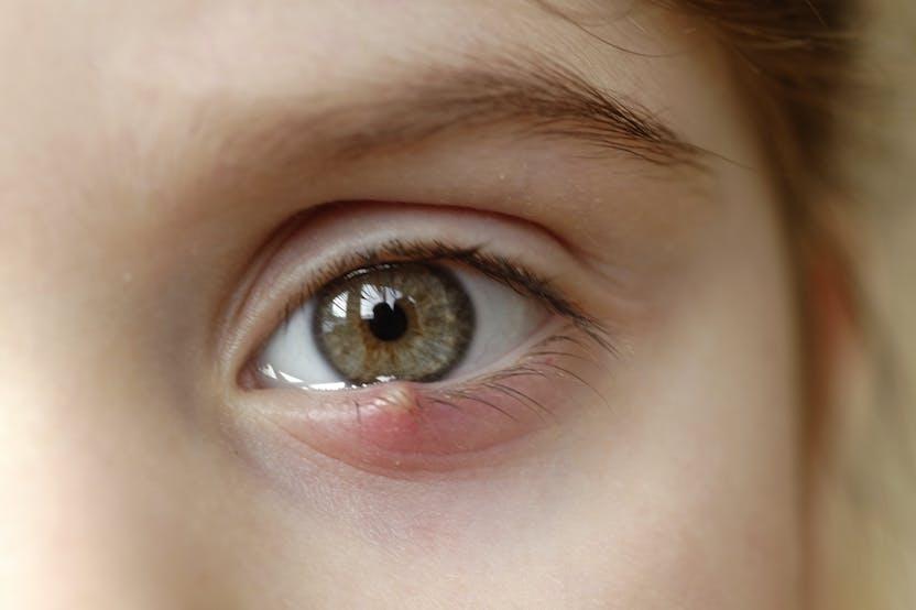 vörös folt a szem kezelés alatt egy piros folt jelenik meg a bokán és viszket