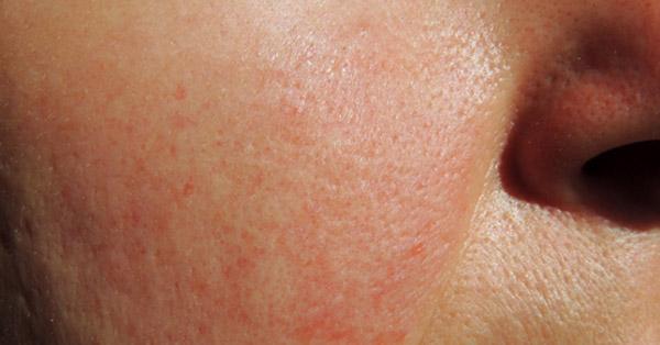 Piros foltok a homlokon: okok és kezelés - Vörös pikkelyes foltok az állon és a homlokán