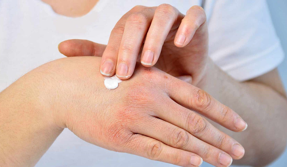 az aszpirinnel pikkelysömör gyógyítható pikkelysömör arc népi gyógymód