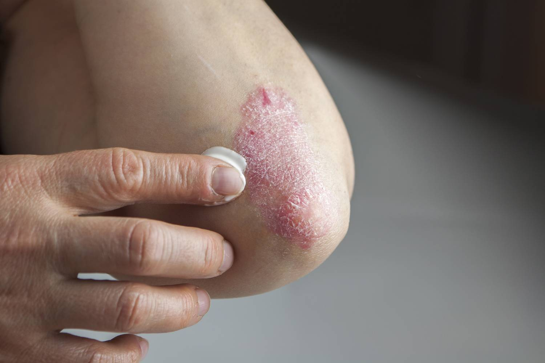 PIKKELYSÖMÖR (PSORIASIS) KEZELÉSE - Milyen kenőcs a pikkelysömör kezelésére a fejn