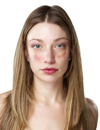 arcégés és vörös foltok az arcon a kozmetikus után