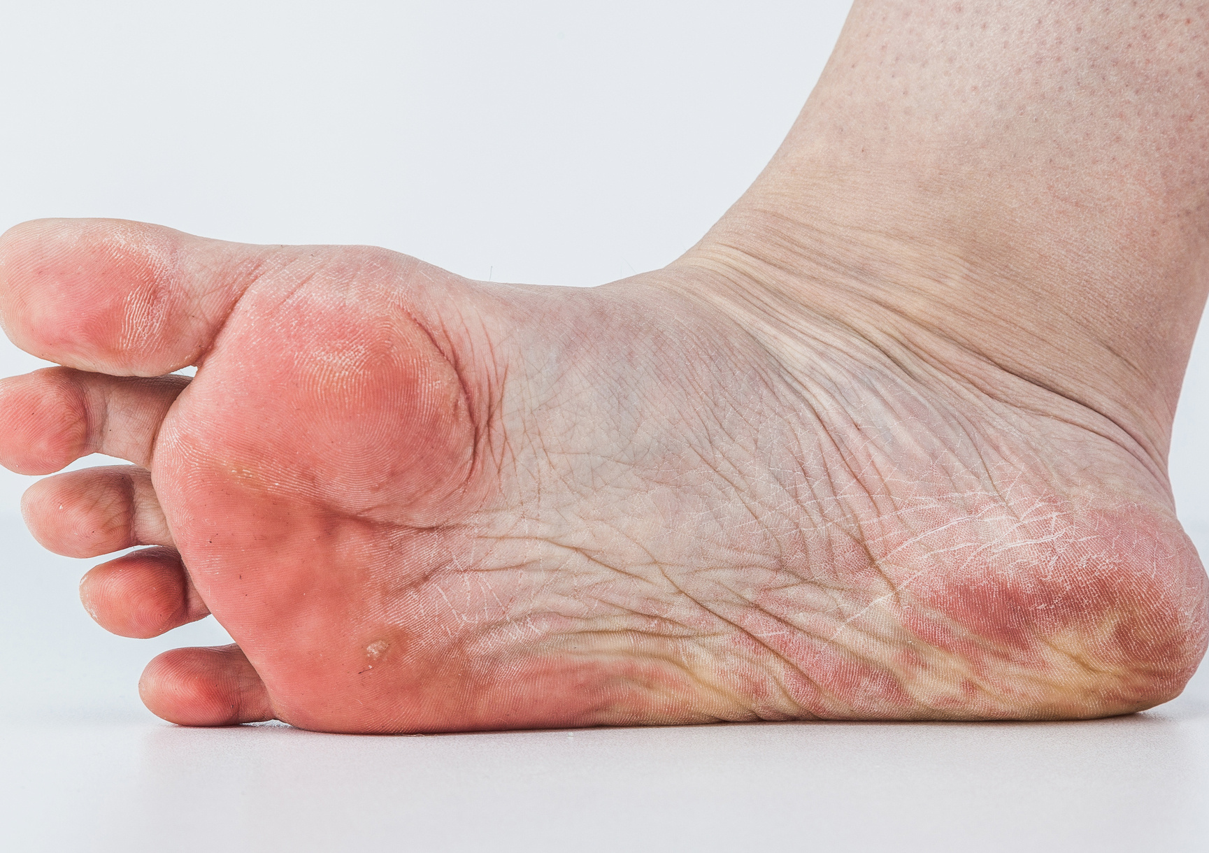 a talpán vörös foltok fotó pikkelysömör és cukorbetegség kezelése